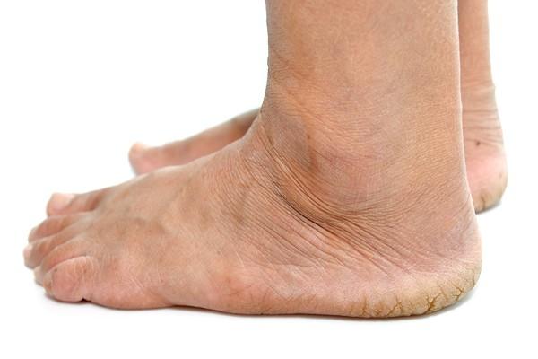Diabetes Foot Treatment Calgary Alberta The Foot Institute