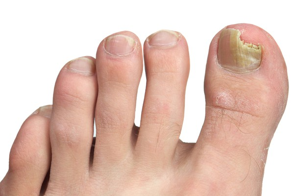 foot and toenail care