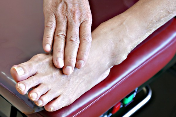 Foot Arthritis Treatment edmonton, Alberta