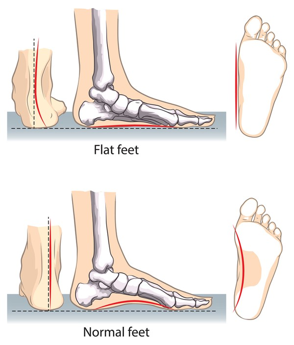 Flat Feet Treatment edmonton Treatment Alberta