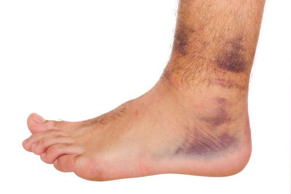 Foot and Ankle Injury Treatment edmonton, Alberta