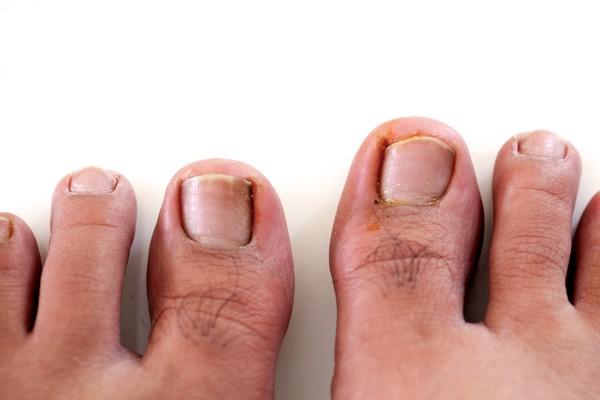 toenails problem